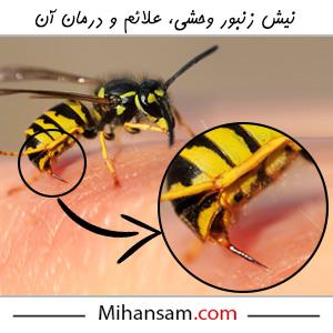 نیش زنبور وحشی، علائم و درمان آن